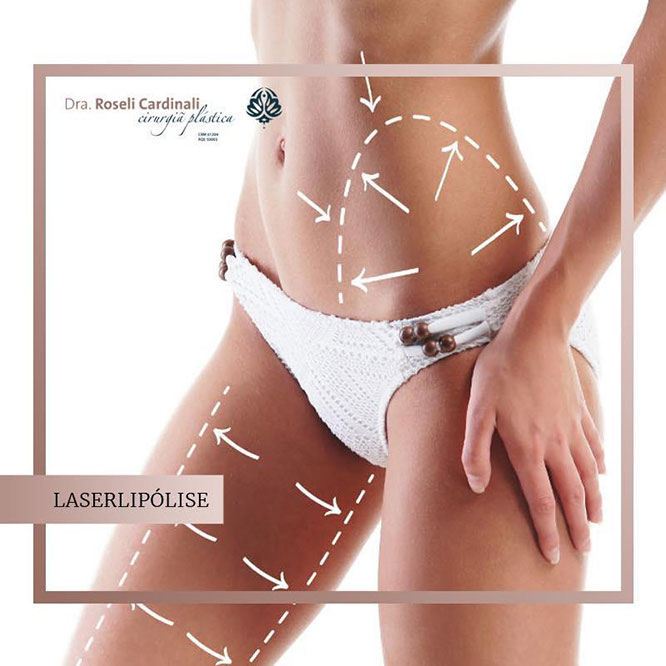 Agora vamos cuidar do corpo Laserlipólise: beleza minimante invasiva